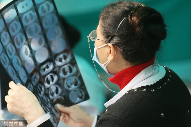 《当AI读片能力胜过顶尖名医团队》一位专家看患者核磁共振影像片子。