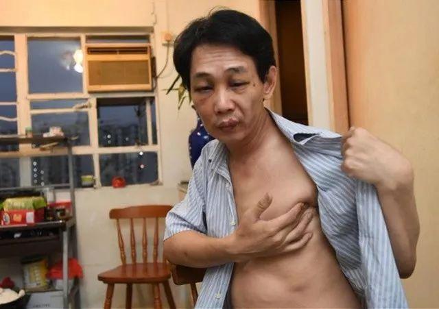周晓东刚出院回家养伤,其左边肋骨位置瘀痛,难以入睡。图片来自大公报