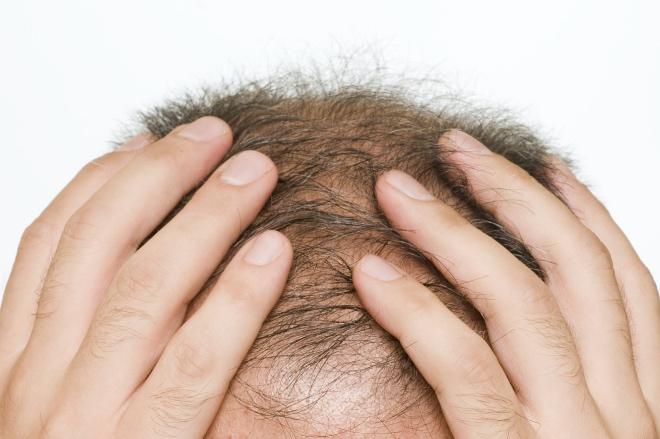 《最新研究揭示脱发新机制》脱发是一种很古老而常见的现象,在男性中更为显著,一般会随人年龄增大而在中老年群体中更多出现。