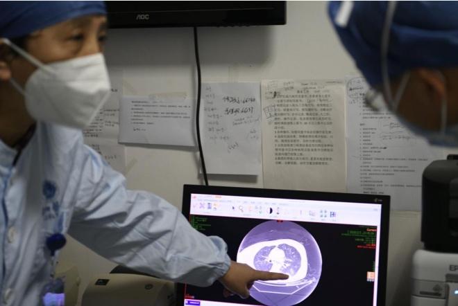 童巧霞教授在审看每个新型冠状病毒感染的肺炎患者的片子,制定治疗方案。